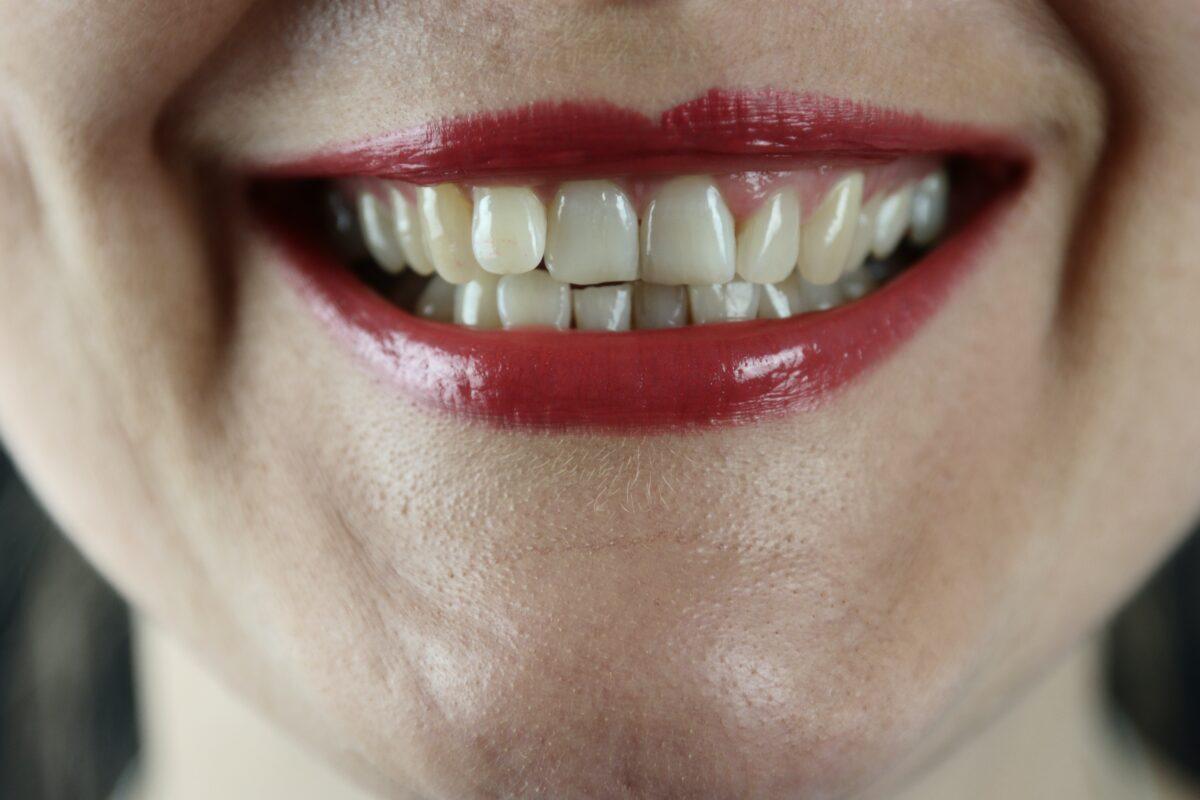 ilningar i tänderna